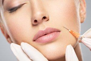Surco Nasogeniano - Tratamiento Facial
