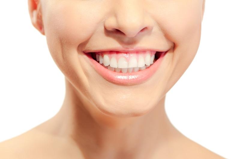 sonrisa gingival tratamiento facial