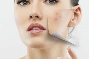 peeling para cicatrices y acné