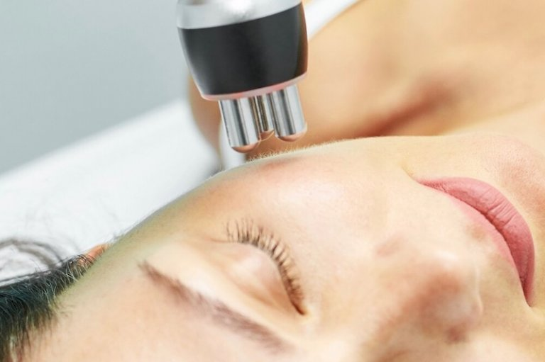 radiofrecuencia facial tratamiento estetico