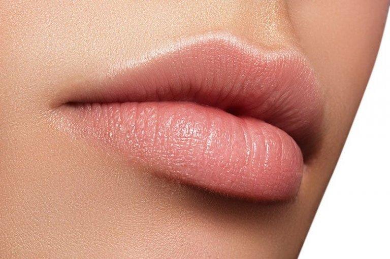 correccion de asimetrias labios acido hialuronico
